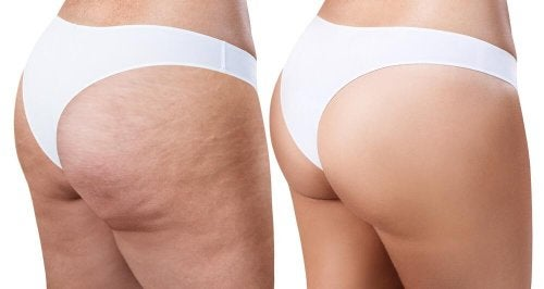 Che cos'è la Cellulite?